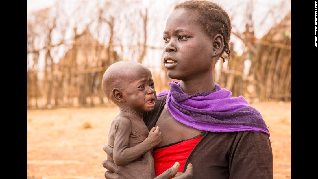 "Adele Bol walked more than three hours with her 10-month-old daughter to reach a food distribution center in South Sudan. Bol has two other children who are as malnourished as her infant. ""I haven't eaten in days, and that's why I don't have any breast milk to feed my daughter,"" she says."