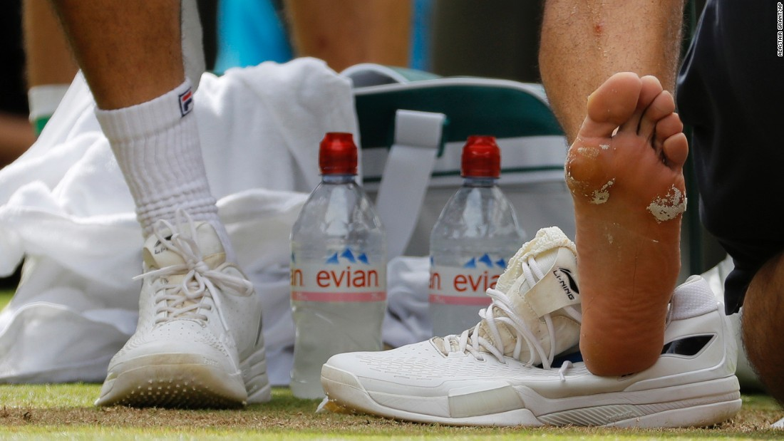 Cilic receives treatment to his foot during a medical timeout.
