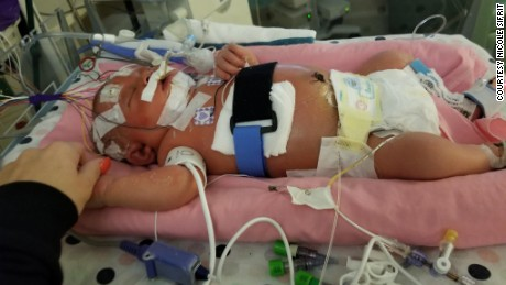 Baby dies of viral meningitis after deadly kiss