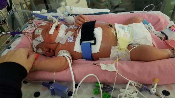 Mariana's parents are clinging to hope as she battles life-threatening meningitis.