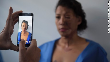 An acid attack survivor stands for a photo in a surgeon's office in Bogota, Colombia.