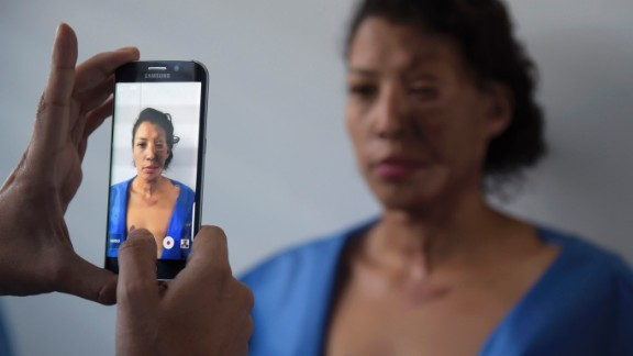 An acid attack survivor stands for a photo in a surgeon