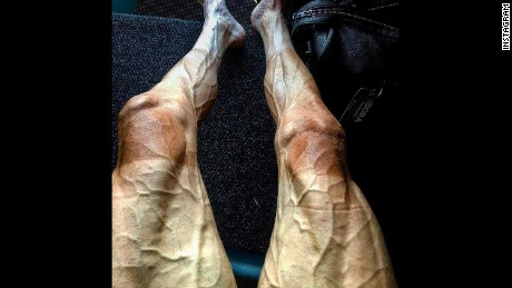 Pawel Poljanski posted a photo of his legs on Instagram.