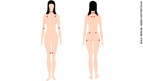 Tender trigger points of fibromyalgia, no longer used for a definitative diagnosis.