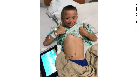 Jackson Arneson poses before his kidney transplant surgery on June 22.