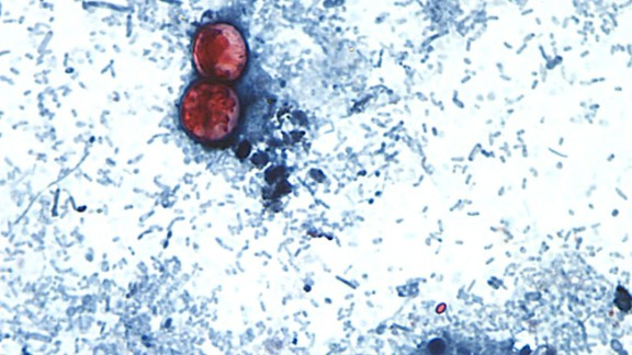 Cyclosporiasis is an intestinal infection caused by the cyclospora cayetanensis parasite.  It's seen here on a stool sample through a microscope on a slide. The parasite is too small to see without the use of a microscope. Illness is caused by consuming food or drink that contains the parasite and usually takes about a week to make a person sick.