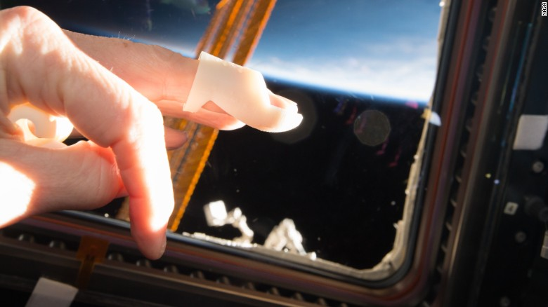 Mallet splint Caption: 3D4MD 3D-printed the first medical supplies onboard the International Space Station on January 11, 2017. 3D4MD crowdsources and creates cost-optimized printable designs of medical resources to treat an ill or injured astronaut on-site during a long space mission.