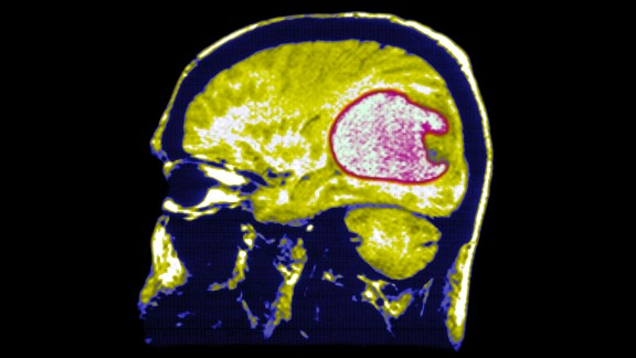 Mri T1. Glioblastoma. A Nodulus Of The Cerebellum Protrudes Into The Cystic Cavity. (Photo By BSIP/UIG Via Getty Images)