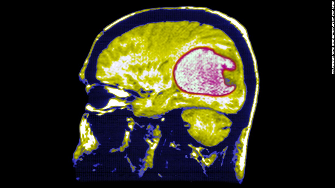 How the polio virus is being used to combat brain cancer - CNN