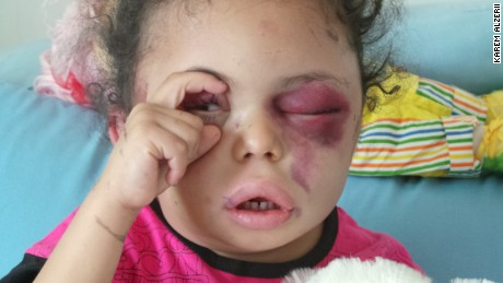 The 5-year-old girl who opened the world's eyes to Yemen's plight