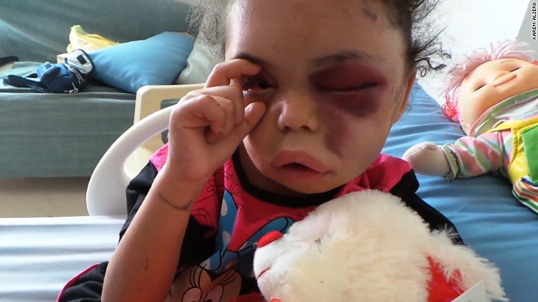 Little girl opens the world's eyes to Yemen conflict