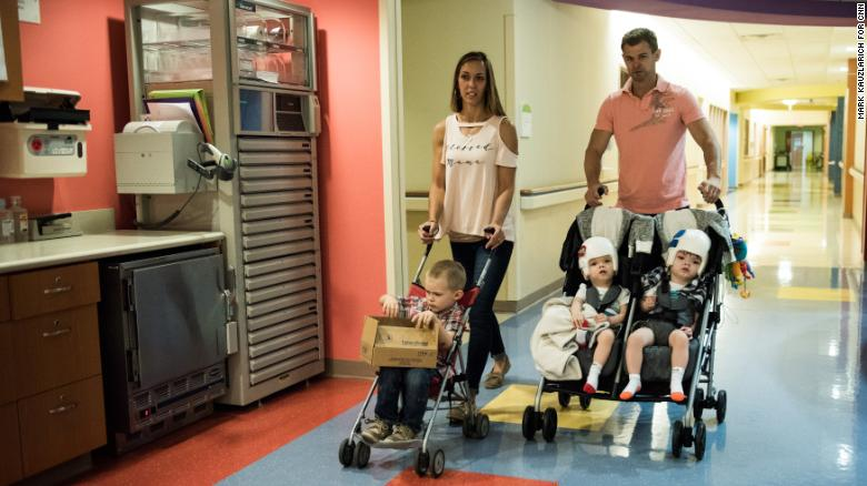 Formerly conjoined twins return home