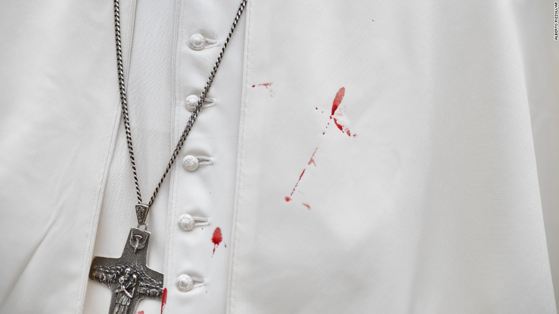 "Blood stains Pope Francis' cassock Sunday, September 10, after he accidentally hit his head on his Popemobile in Cartagena, Colombia. Vatican spokesman Greg Burke said the Pope was bruised but OK. <a href=""http://www.cnn.com/2017/09/07/americas/gallery/pope-francis-colombia-visit/index.html"" target=""_blank"">See photos from the Pope's five-day visit to Colombia</a>"