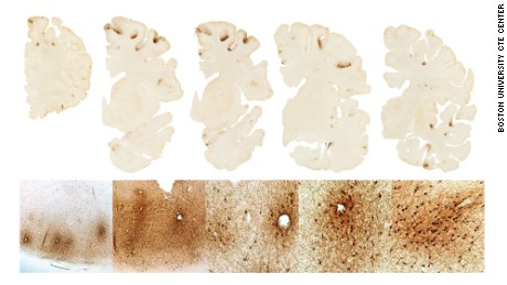 This graphic from the Boston University CTE Center shows the classic features of CTE in the brain of Aaron Hernandez. There is severe deposition of tau protein in the frontal lobes of the brain (top row). The bottom row shows microscopic deposition of tau protein in nerve cells around small blood vessels, a unique feature of CTE.