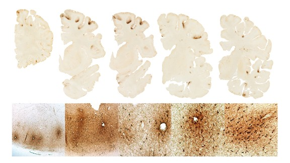 "Boston University's CTE Center said Aaron Hernandez's brain, above, shows ""classic features of CTE."""