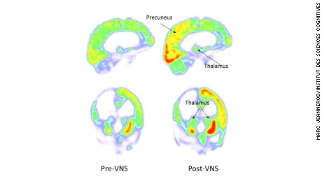 PET scan images of the brain show areas of the brain where glucose metabolism, necessary for mental function, increased following vagus nerve stimulation.