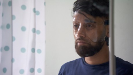 Acid attack victim: 'Feels like your face is melting'