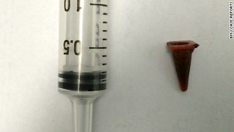 Size of Playmobil toy cone that was inside a man's lungs for 40 years, compared to a 2.5mL syringe.