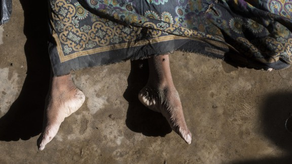 The body of a Rohingya refugee who died when the boat capsized was covered before the funeral. (Fred Dufour/AFP/Getty Images)