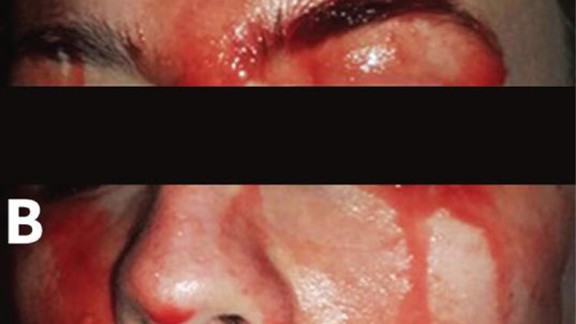 A young woman was sweating blood from her face and palms, a recent case study said.