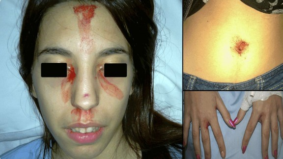 An unrelated case study of sweating blood was reported from Hospital General Universitario de Alicante in Spain.