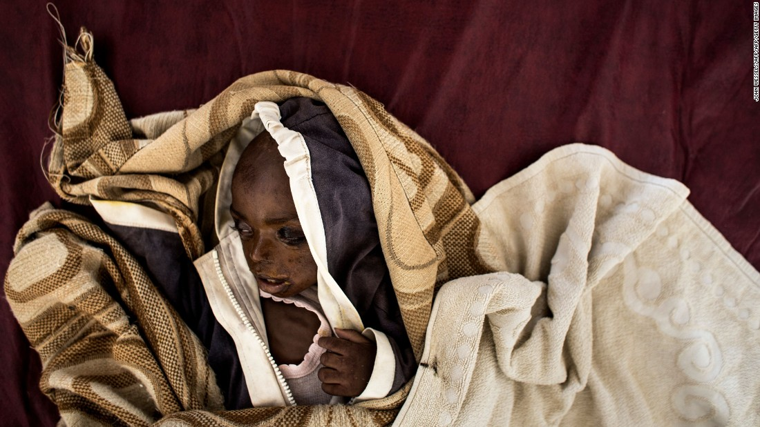 A severely malnourished child rests on her bed inside a rehabilitation center in Tshikapa, Congo, on Monday, October 23. Conflict between the government and a local militia has displaced more than 1 million people since August 2016.