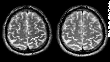 A short-term spaceflight astronaut's brain before, left, and after a mission.