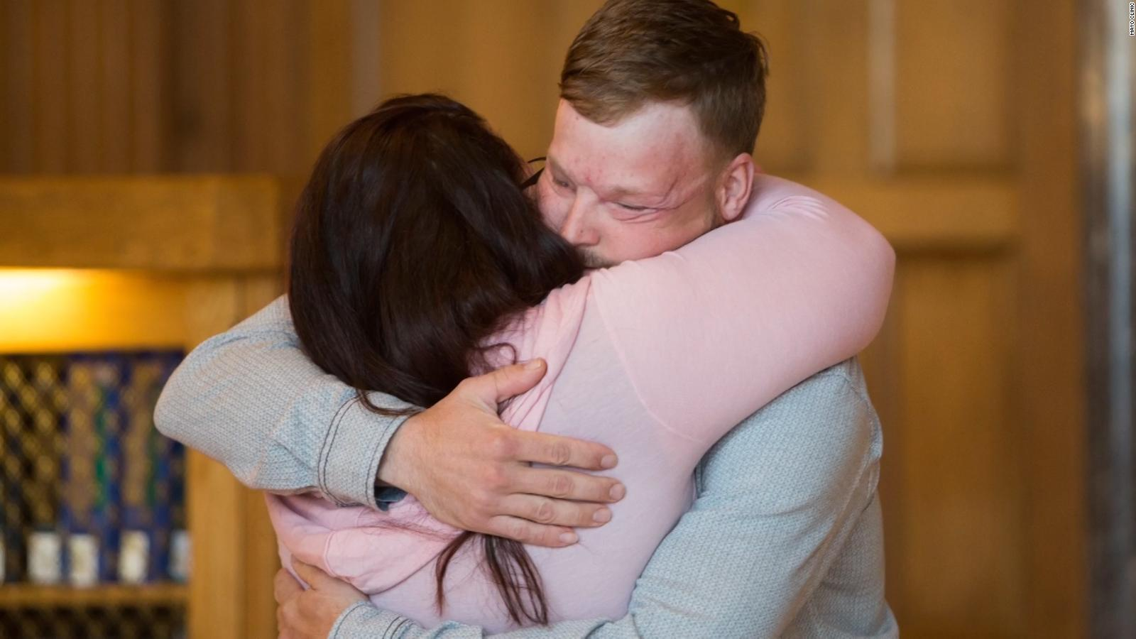 Face transplant recipient meets donor's family