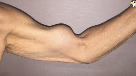 "A 79-year-old man exhibits the characteristic biceps muscle bulge of ""Popeye"" sign."