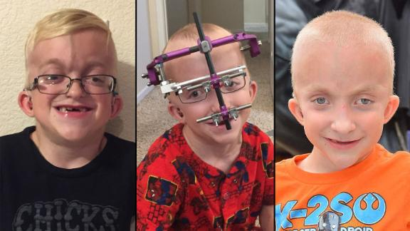 Shane Vysocky before, during and after his most recent surgery. He had to wear a halo device around his head that helped pull his jaw forward.