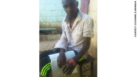 Ussumane Djamanca shows his hand wounds, which he says resulted from his imprisonment in Libya.