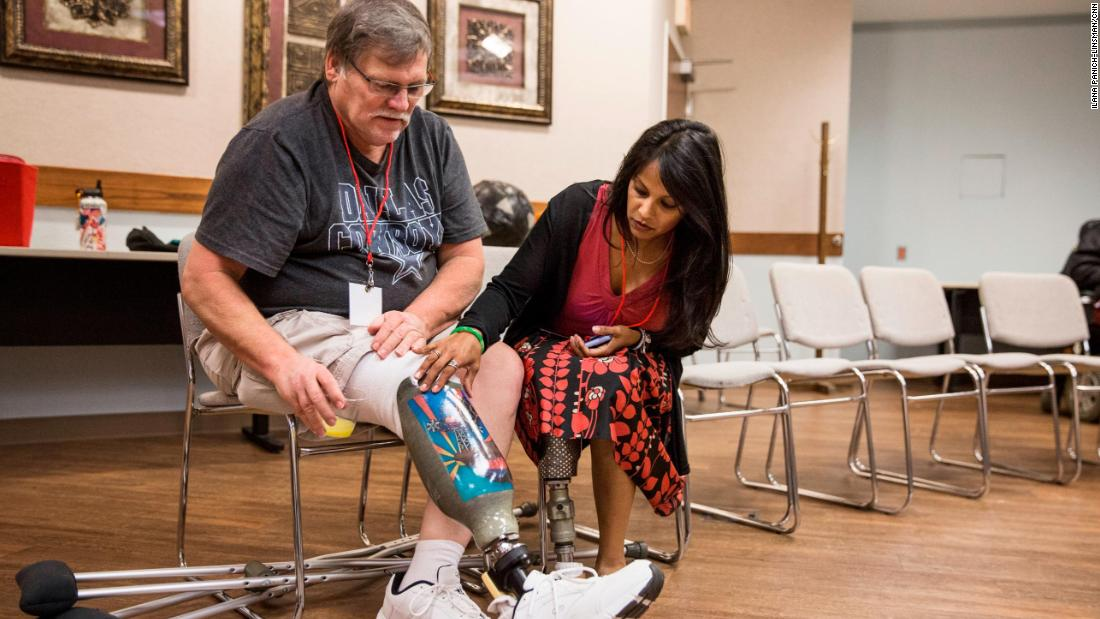 """When somebody becomes an amputee, maneuvering through the system is sometimes just scary,"" said Patel, a below-knee amputee. ""I think the big catalyst of me doing what I do to help the amputee community is because I lived it."""