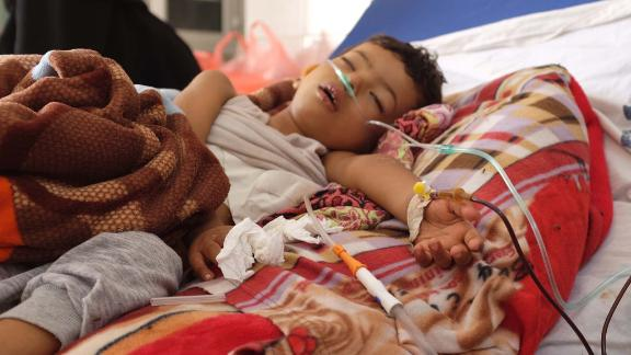 Three-year-old Khadir suffers from a lung infection in an understaffed and overwhelmed hospital in Aden. He died the day after CNN