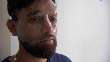 Acid attacks on the rise in Britain