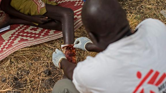 A girl is treated for a snake bite at a Medecins Sans Frontieres (MSF) clinic in Leer County, South Sudan.