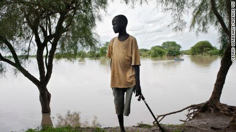 A snakebite victim with an amputated leg on the banks of the Pibor River in Jonglei State, South Sudan.