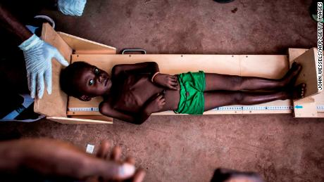 A child is measured at a clinic treating severe malnutrition on October 26, in Kasai, Democratic Republic of Congo.
