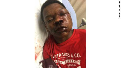 Parents outraged after Alabama boy beaten during arrest