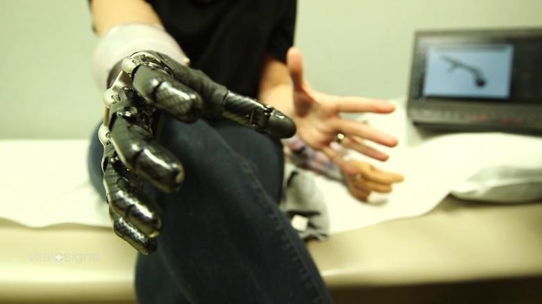 Vital Signs Mind-controlled prosthetics: the next wave of smart arms C_00042925