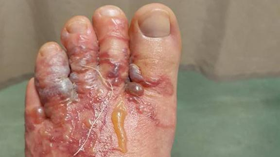 Cutaneous larva migrans occurs when hookworm larvae get into the skin.