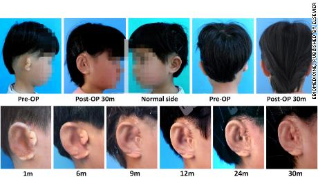 Scientists grow new ears for children with defect