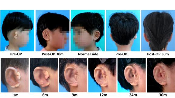 Editor's note: The photo accompanying this story has been blurred to protect a minor's identity.  In Vitro Regeneration of Patient-specific Ear-shaped Cartilage and Its First Clinical Application for Auricular Reconstruction Zhou, Guangdong et al. EBioMedicine, published by Elsevier.