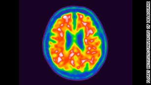 New approach to Alzheimer's fight: Diabetes drugs