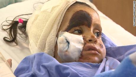 Sarah, 3, suffers from frostbite after smugglers abandoned her and her family as they were crossing into Lebanon.