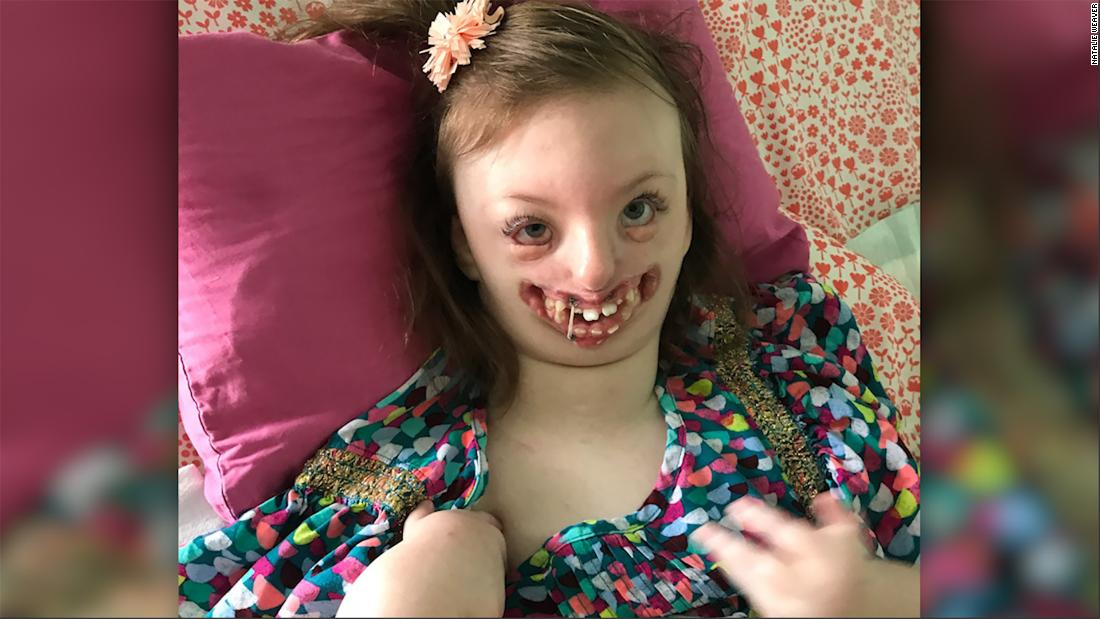 Deformities severe facial 25 Celebrities