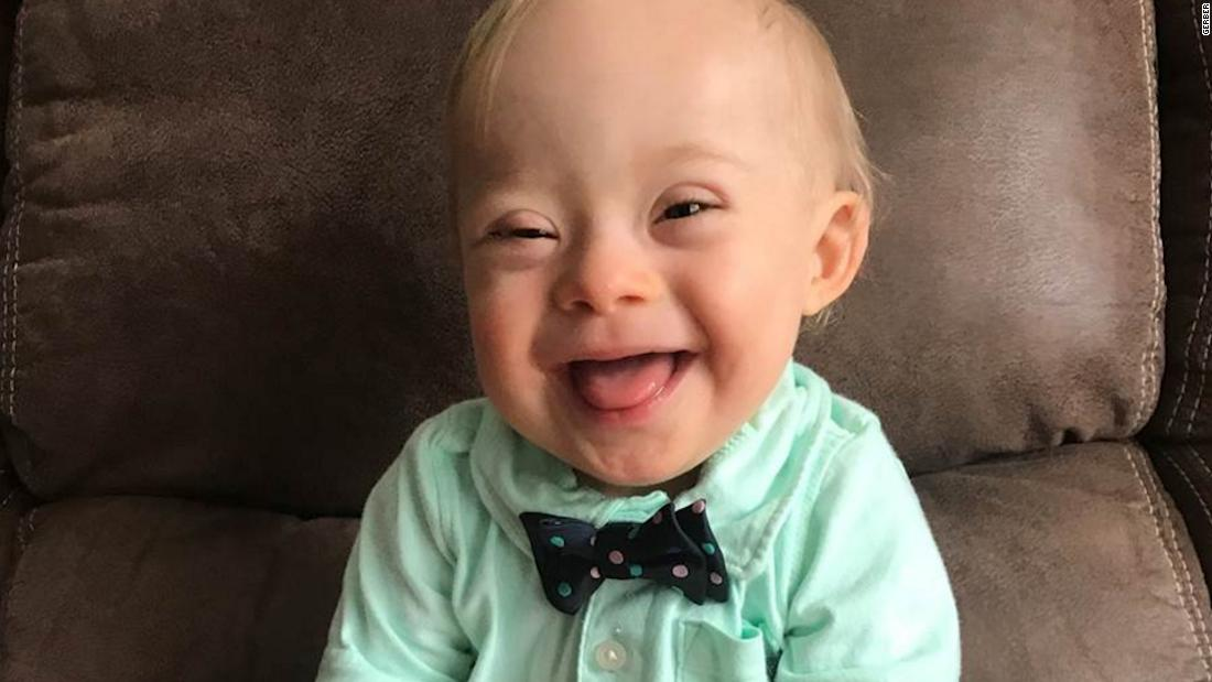 image of Meet the first Gerber Baby with Down syndrome