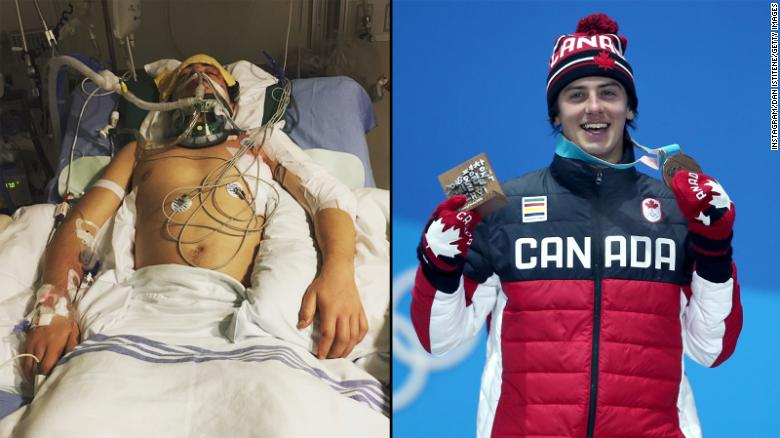 Mark McMorris: From injury to Olympics hopeful