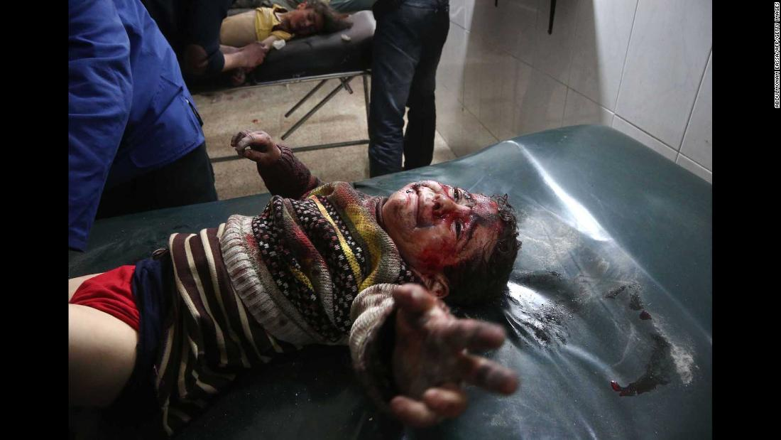 An injured child cries as he receives treatment at a makeshift hospital in Hamouria.