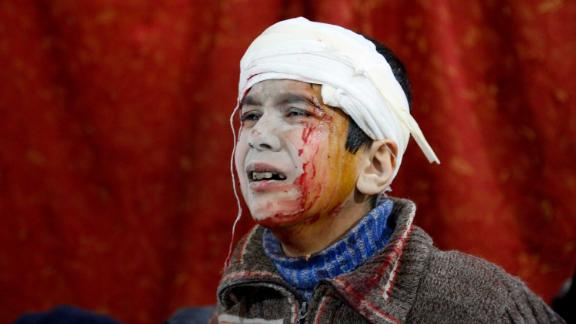 A boy waits to receive medical treatment at a field hospital on February 19.