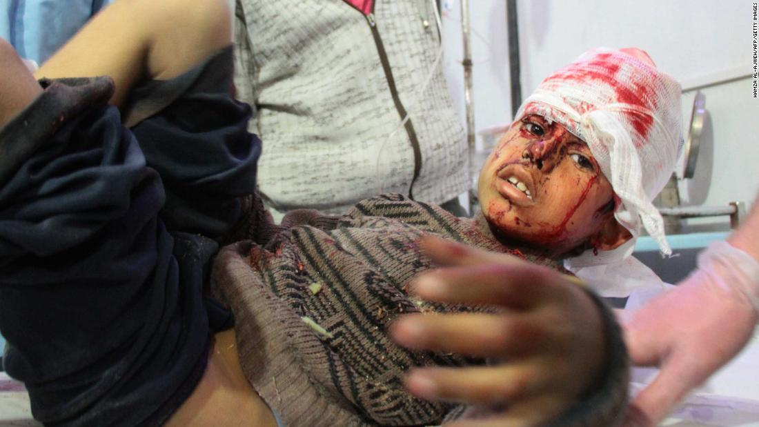 A wounded boy receives treatment in Douma following airstrikes on the village of Mesraba.